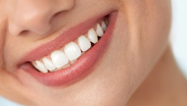 Closeup of perfect smile with porcelain veneers
