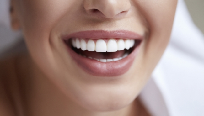 Closeup of perfect smile after dental implant tooth replacement