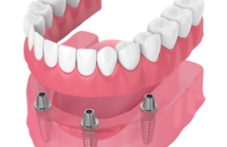 Animated all on four dental implant denture
