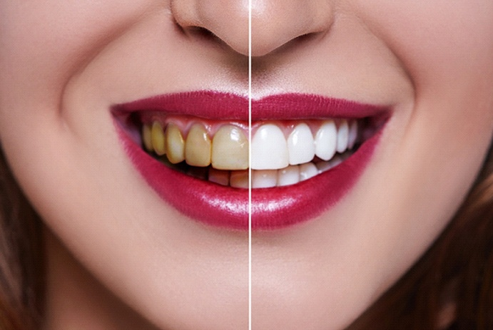 before and after comparison of teeth whitening in Fort Worth