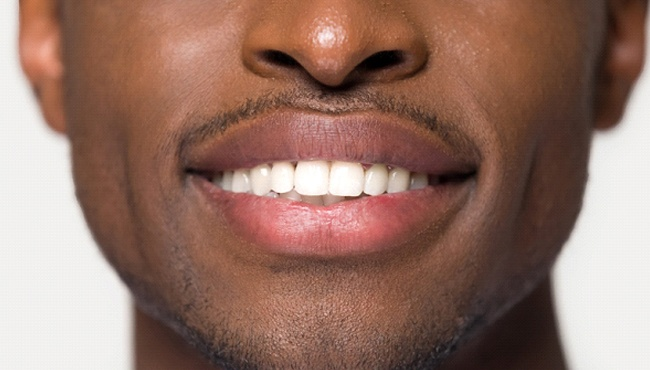 Closeup of smile after teeth whitening in Fort Worth
