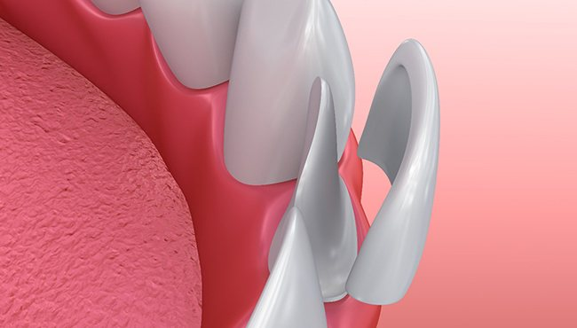Illustration of veneer being placed on tooth