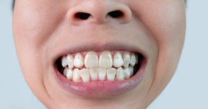 woman with white spots on teeth
