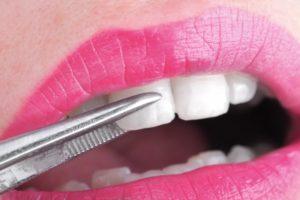person with veneers on their teeth