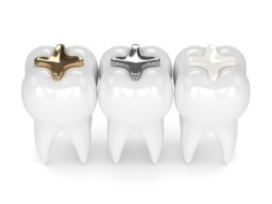 two teeth with metal fillings and one with a tooth-colored filling in Fort Worth